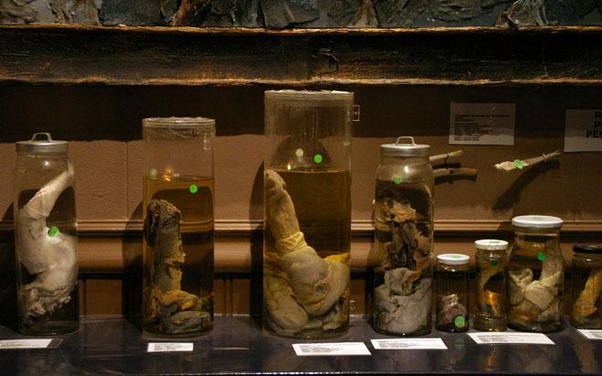 musées flippants